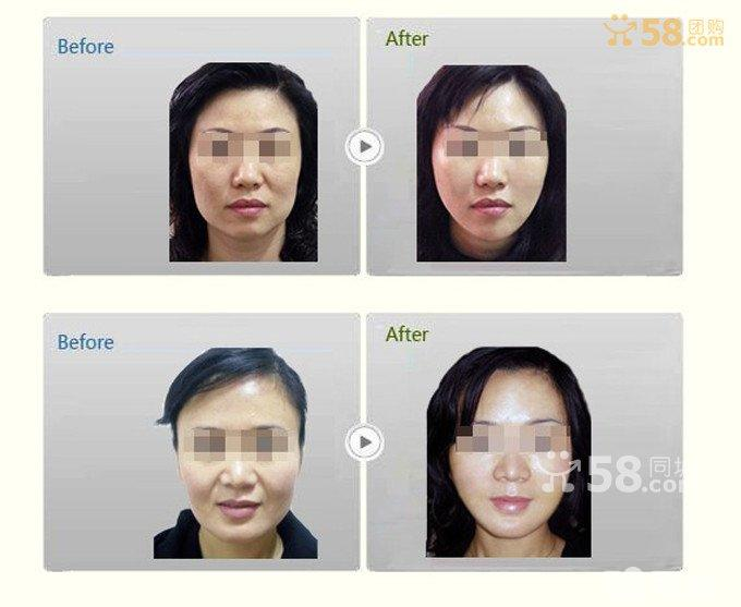 脸上皮肤细胞层图