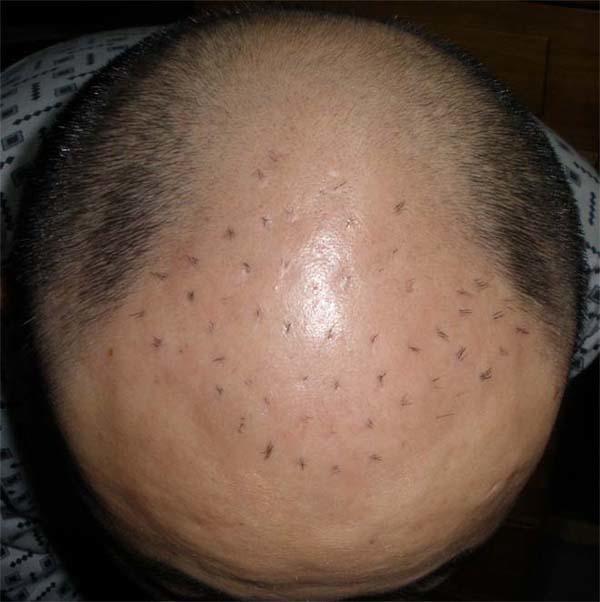 自体毛囊移植大家最关心的问题